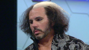 Matt Hardy - Hair